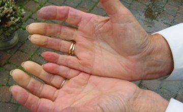 冷到手指變白發麻,竟是疾病的前兆...