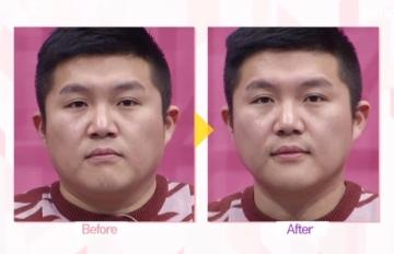 打擊虛胖,還我好氣色!韓妞都靠這招「牙刷排毒瘦臉法」