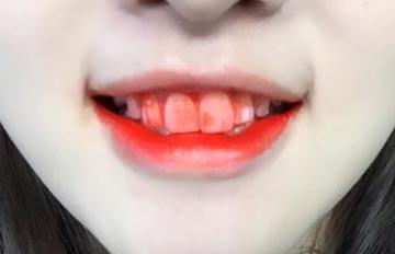 >人家真的不是吸血鬼啦<!因為唇彩讓人抓狂的7個瞬間