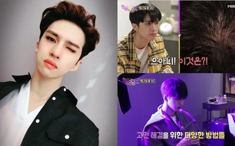 男團VIXX成員竟有「禿頭危機」...成員表示「要改善禿頭的話,要先改脾氣」...?