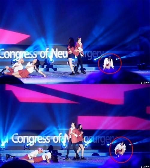 就有網友收集,之前世界神經外科學會,在首爾舉辦的學術大會上, 邀請f(x)進行表演,結果左邊成員努力做著費力的舞步, 就雪莉沒跟著編舞,只是蹲在那邊~ 讓人懷疑她當時是不是已經無心歌唱事業?
