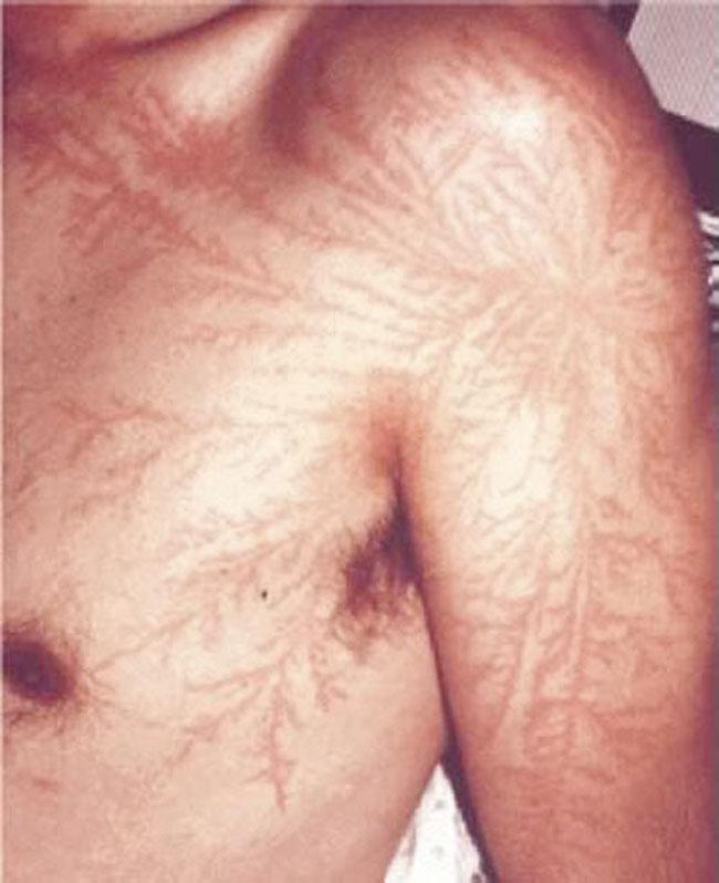 其實利希滕貝格圖騰也是燒傷的一種,持續接受治療的話,是可以消除的傷痕喔~