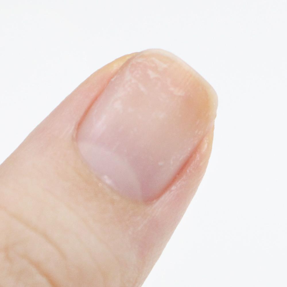 要是還有殘留物在指甲上