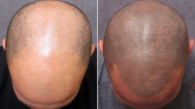 頭皮紋身其實就是在沒頭髮的地方紋上髮際線