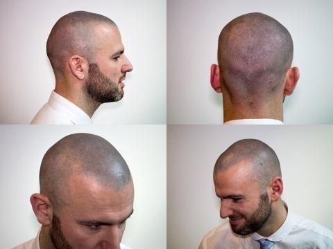 做一次2000-3000英鎊(1萬台幣到1萬5),在英國髮際線永遠是一門生意,紋身師也可以插一腳......