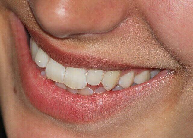 雖然表面牙齒看起來很光滑,但用顯微鏡看的話會看到很多小小的洞洞.  喝咖啡的時候色素會通過這些小小的洞洞進去,再進到牙齒裡面,這樣牙齒就會開始變色.