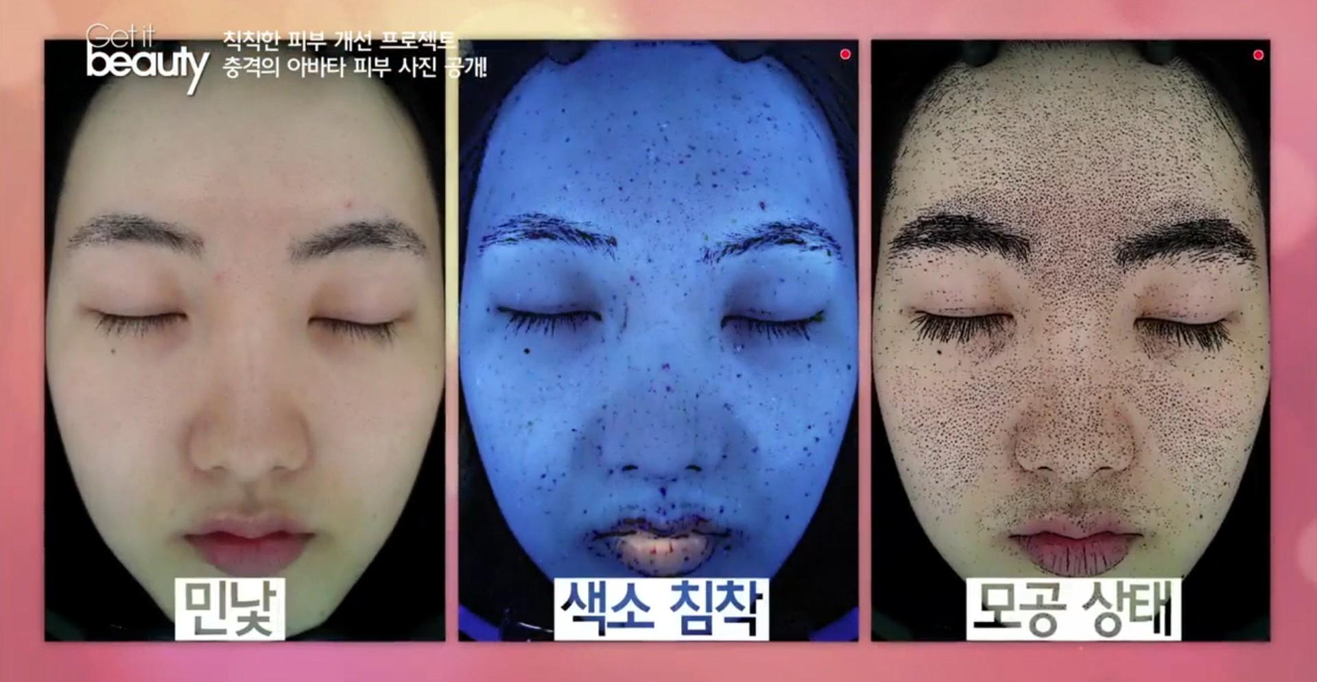 不過,透過更精密的儀器會發現,原來臉上有這麼多黑色素沉澱(中圖),另外被阻塞的粗大毛孔(右圖)也超誇張的啦~我們如果去做肌膚檢查可能比這還嚴重...