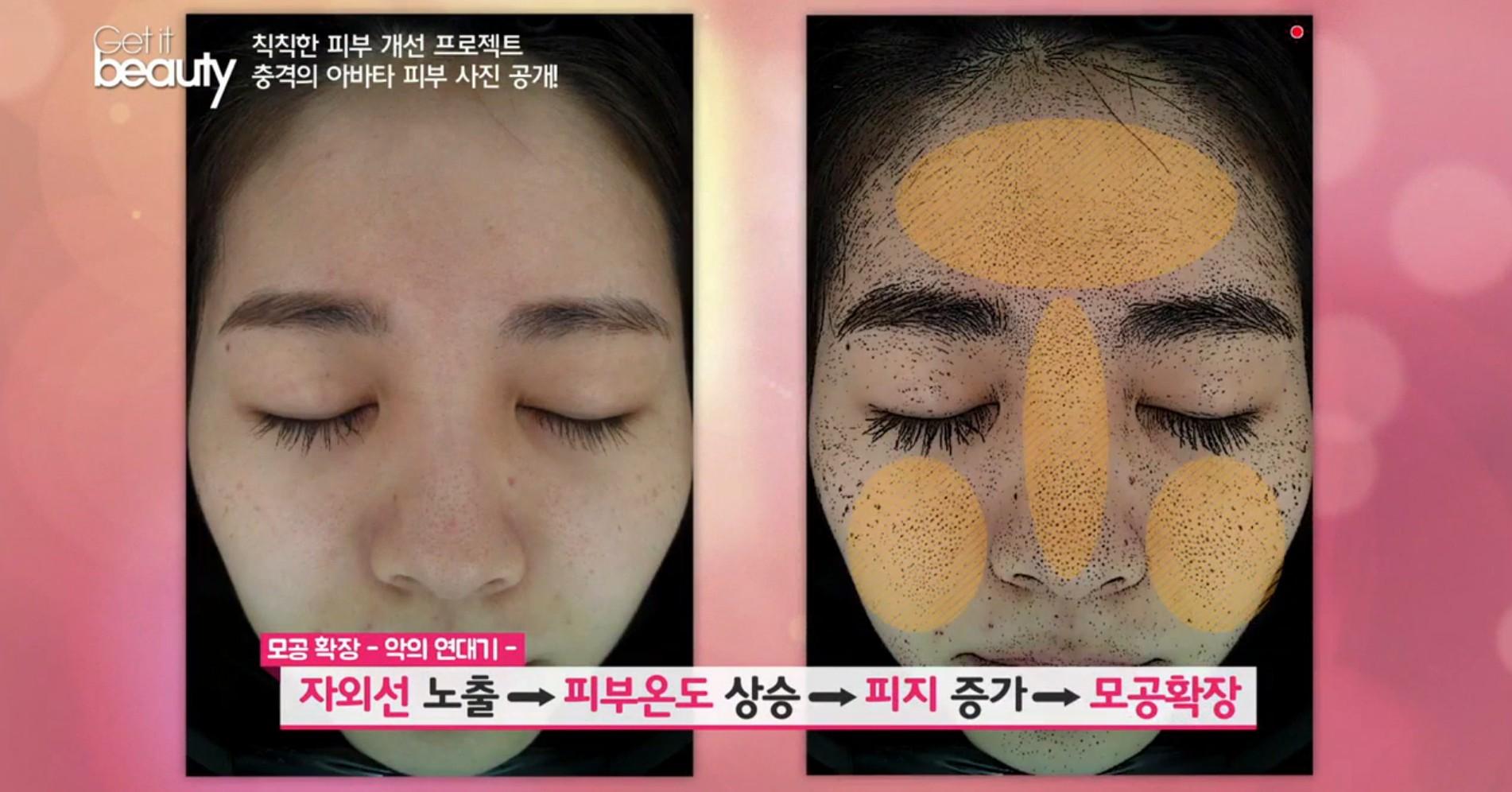 專家表示,毛孔經過日曬後因為臉部溫度上升,皮脂增加,加上管理不當,進而使毛孔又增大,可怕的無限循環因此導致肌膚暗沉無光,臉色蠟黃!