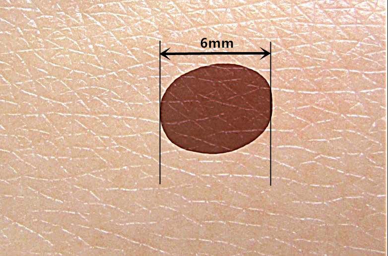 4. D(Diameter)直徑 直徑若大於五至六公釐的痣,要特別留心