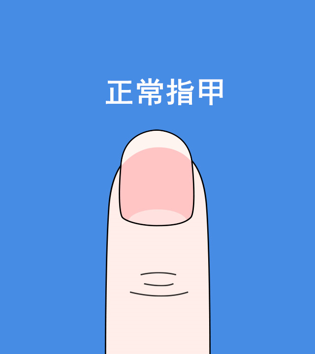 健康的指甲標準:指甲底部應該有白色小月牙,指甲整體呈雞蛋模樣,指甲兩邊既不棱角分明也不過於圓潤;