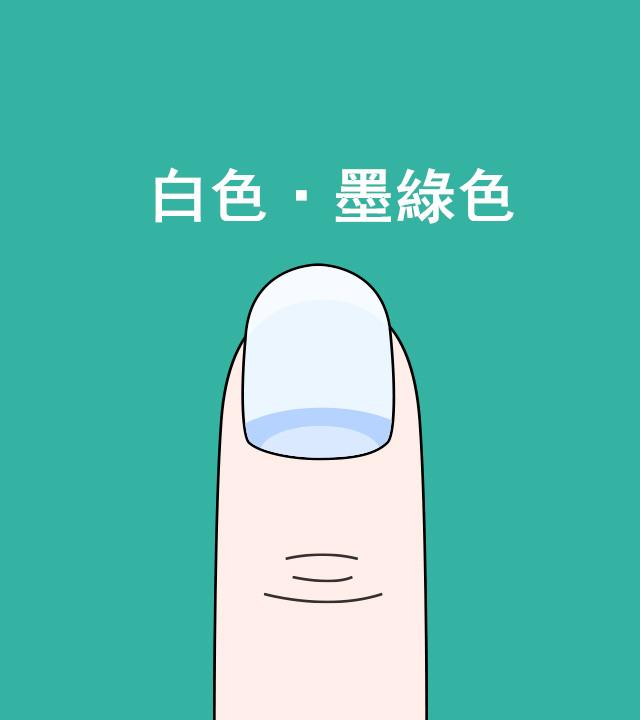 1. 如果指甲的顏色是沒有血色的墨綠色的話? 有可能是呼吸器疾病或貧血、瘀血性心力衰竭、肝病等。