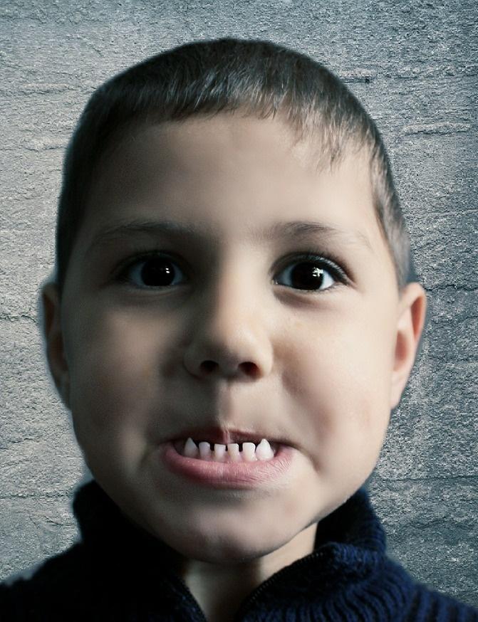 2.牙齒黃 因琺瑯質遭酸蝕,汙垢會留在牙齒上,不易消除。