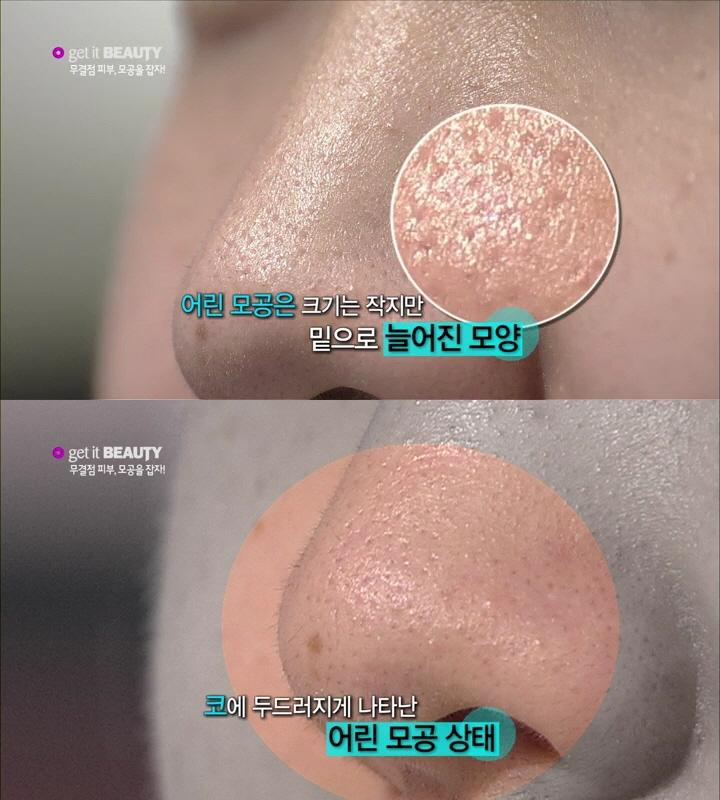 首先是初期的鼻頭毛孔阻塞與粗大的問題!應該很多女生也有這個困擾吧~