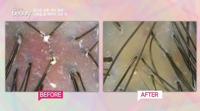 光是護髮、按摩頭皮、洗完頭,三個步驟,頭皮的狀態就差這麼多啊!經過簡單保養後,老廢角質都消失了,頭皮也呈現乾淨的透明度~