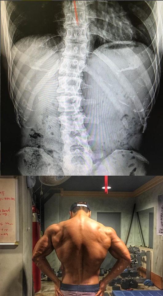 卻有不少的酸民直嗆鐘國歐巴明明身材那麼好還當公益兵..讓他終於在今天PO出自己的X光照片,證明自己是為了減緩痛症,在別人都在睡覺的時候咬緊牙根鍛鍊身材...