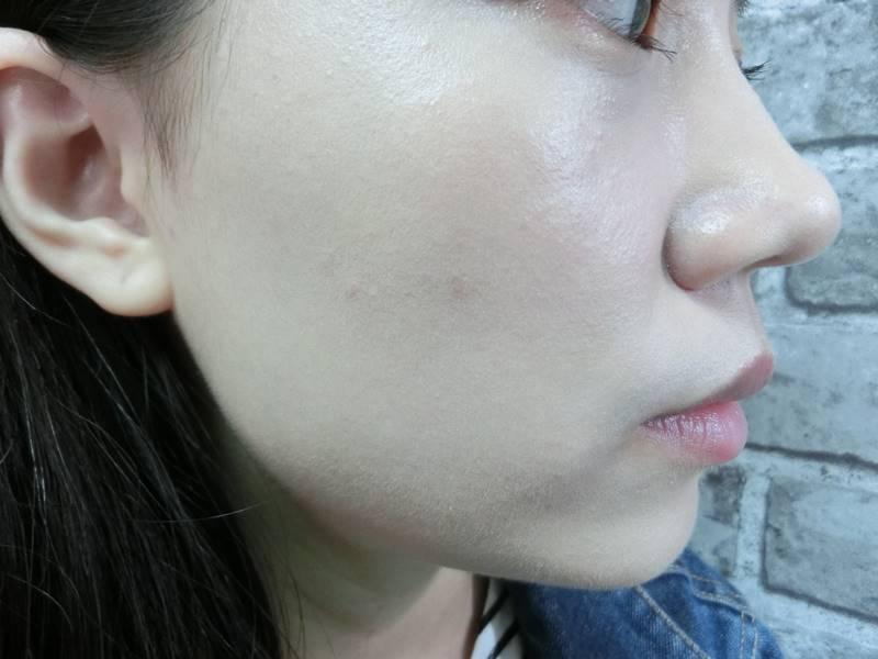 (側邊完妝照)可以看到痘痘沒有完全被遮起來,覺得好像用指腹或是刷具效果會勝過美妝蛋。