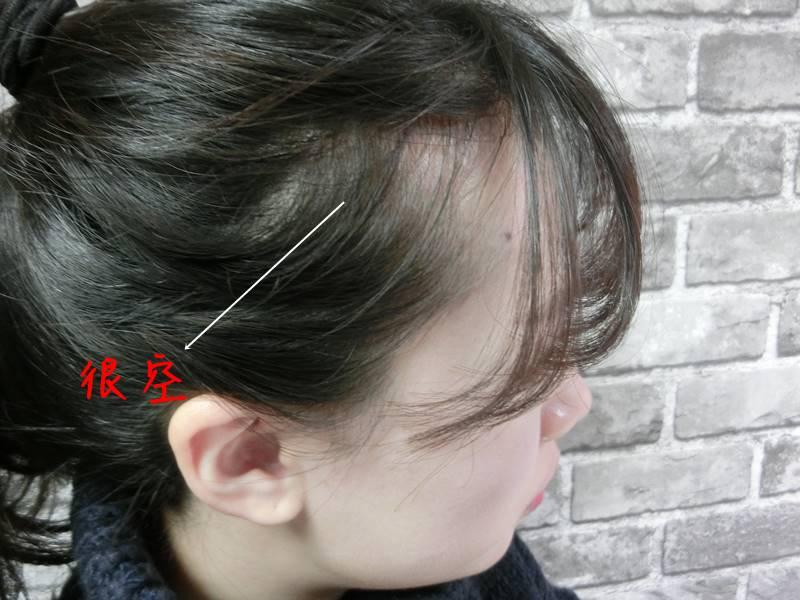 在使用之前先看看歐膩的情況,兩側髮際線很高,看起來很空~