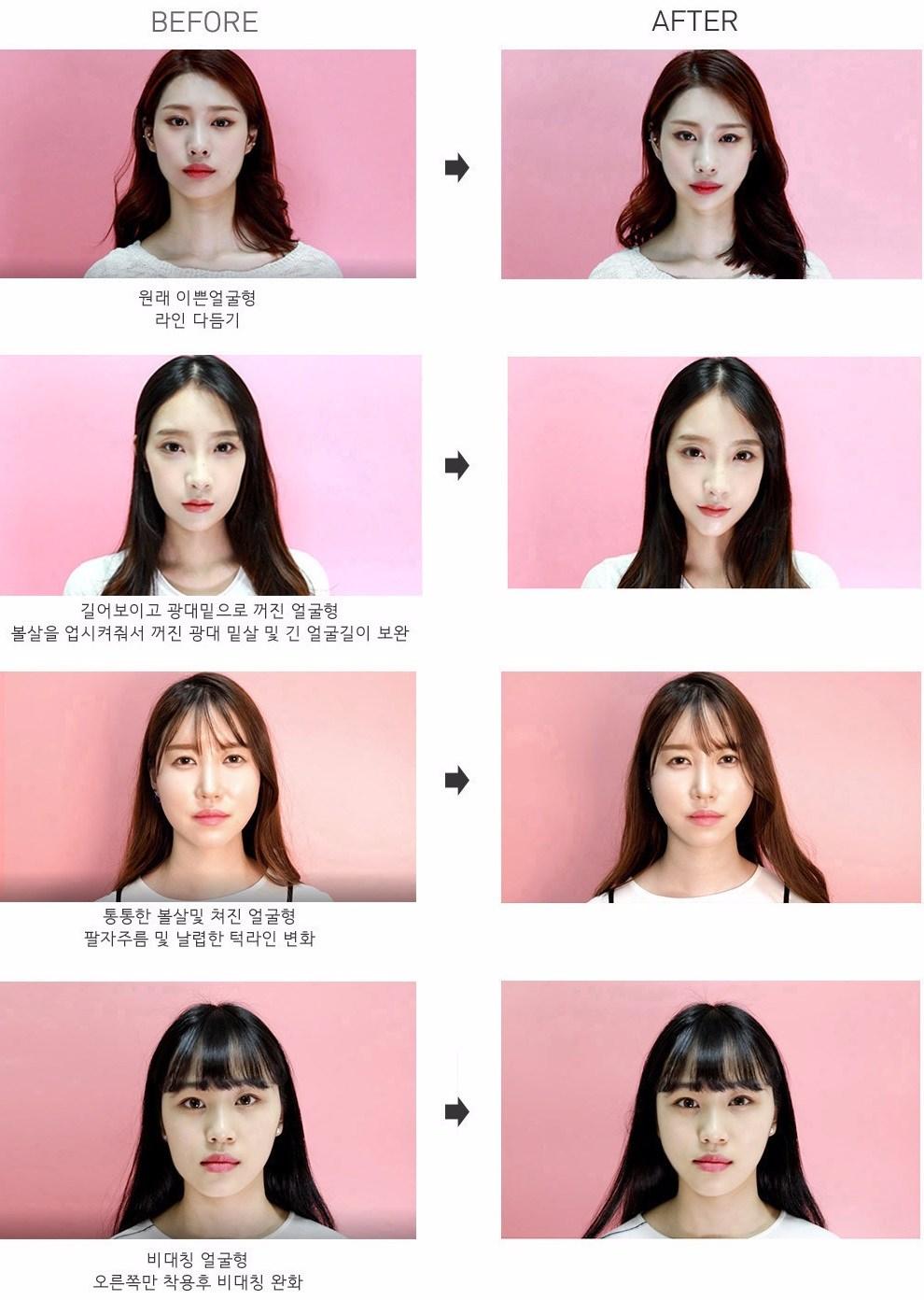 你看看這些女孩使用前後的差異有多大!!!!!使用後各個都是瓜子臉啊~