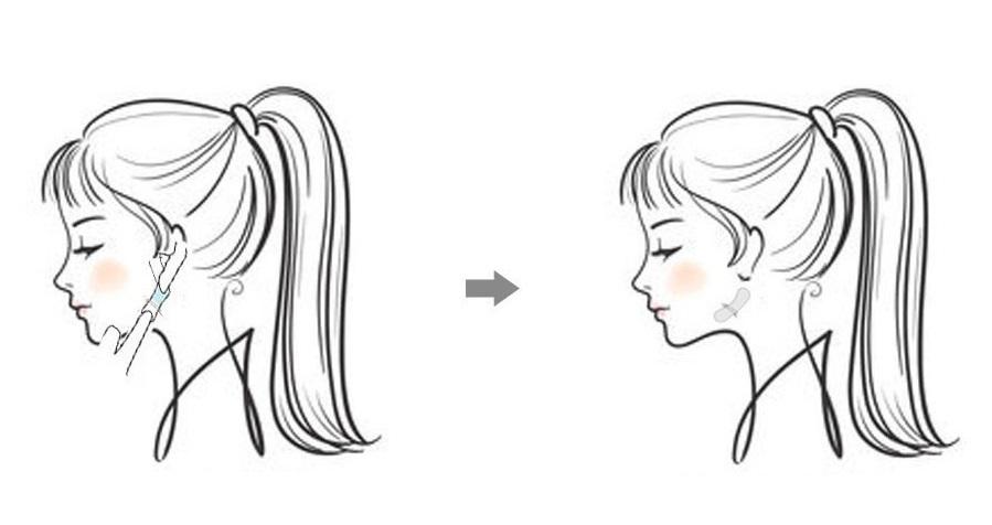 而且據說使用方法很簡單,就是你哪裡胖就貼哪裡,往耳朵的位置向上貼。