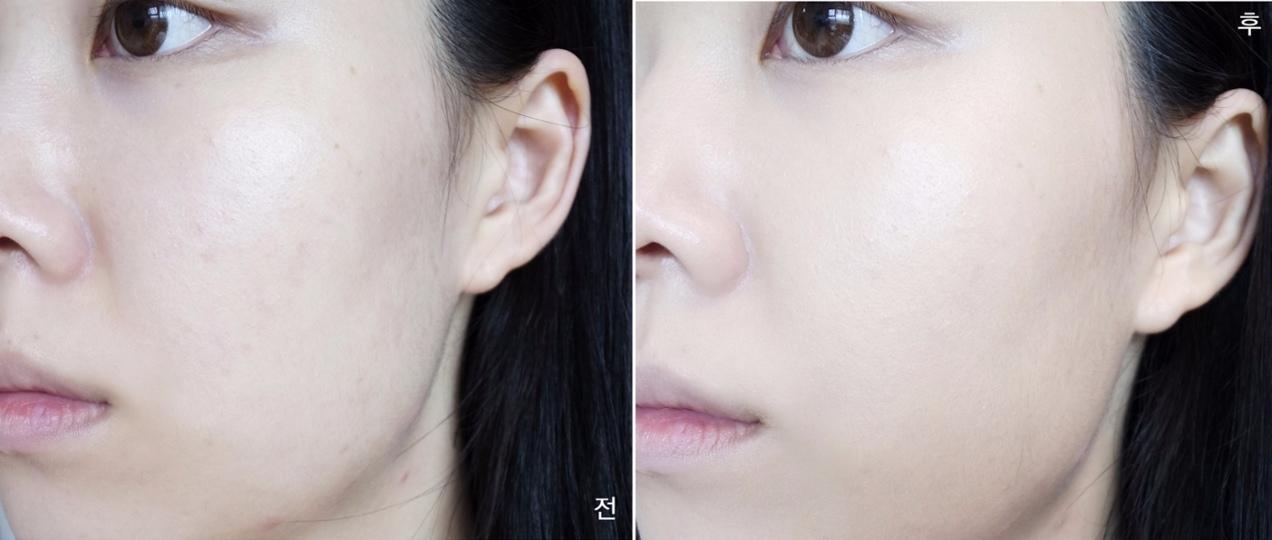 不僅可以遮蓋痘痘,對於鼻翼暗沉、臉部泛紅也有很好的修飾效果。(這款是保濕款,效果已經很好囉!)