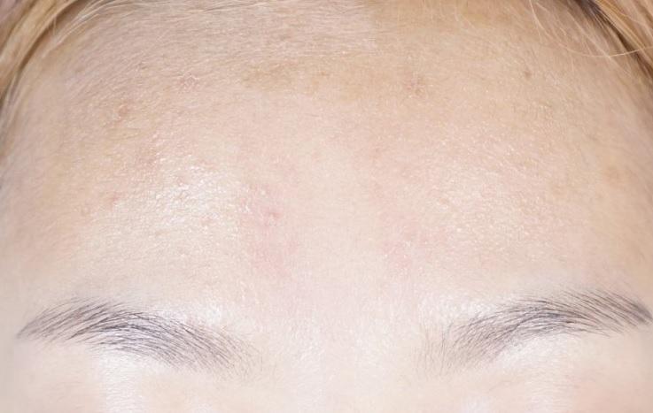 實際使用上更誇張!先看看這張未使用過的樣子,臉上有些痘疤~