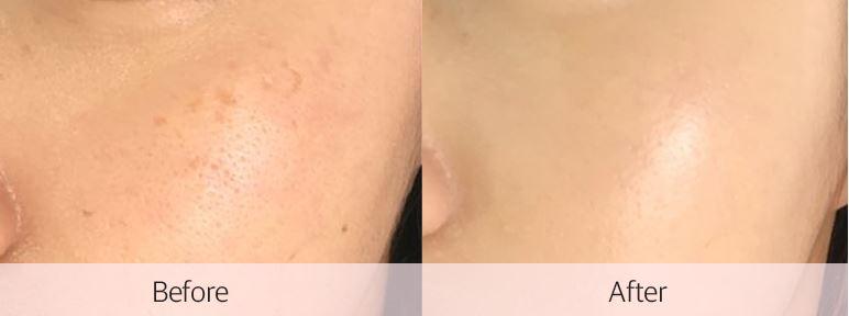 在皮膚上的妝感好像蠻自然的,雙層氣墊粉餅含有prpl家專利的粉體複合物可以填補超級細小的皮膚紋路,所以遮瑕效果是韓妞們非常喜愛的原因之一!