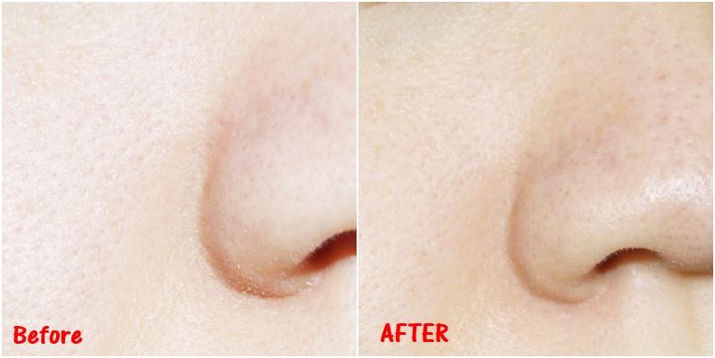 你們自己看看看鼻翼兩側的粉刺,是不是乾淨很多啊~就算左邊的圖比較亮,還是可以看得出來右邊使用後的皮膚變很乾淨啊~