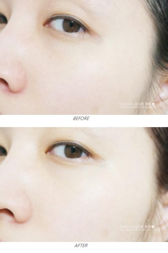 看看使用前及使用後!皮膚不只提亮變白,原本的蠟黃及細紋也全部都改善!這才是有效的保濕啊!