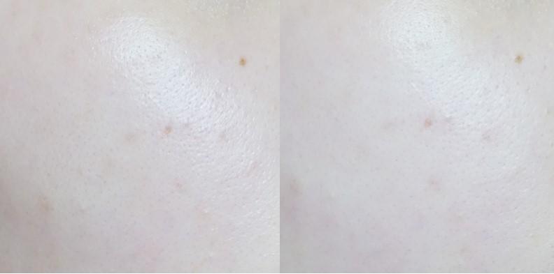 迅速冰鎮的效果非常清涼,收縮毛孔的效果也非常明顯!可以大大的改善出油哦~