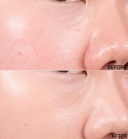 毛孔的問題完全大大的改善,連泛紅的膚色也提亮變成正常的顏色!