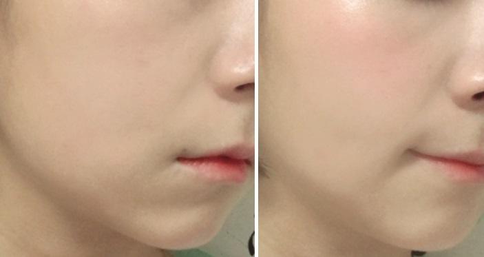 跟使用之前相比臉瞬間變立體了!氣色也變得更好,膚色更加白皙透亮~