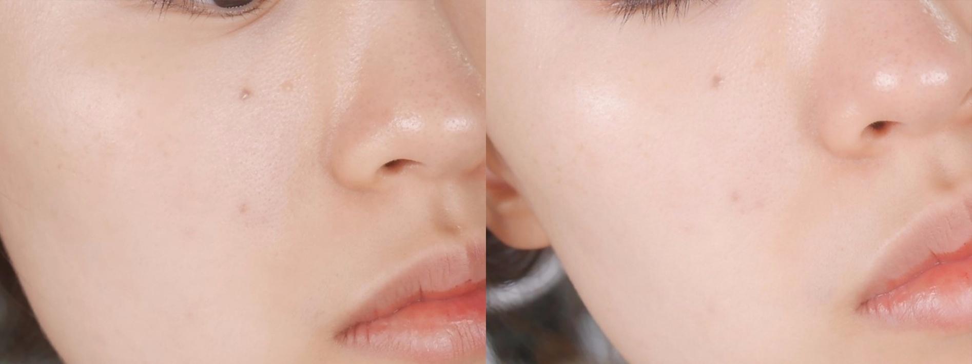 使用過後肌膚的保水度提升,老廢角質被清除後整個臉也變得細緻平滑,甚至變得更明亮了~