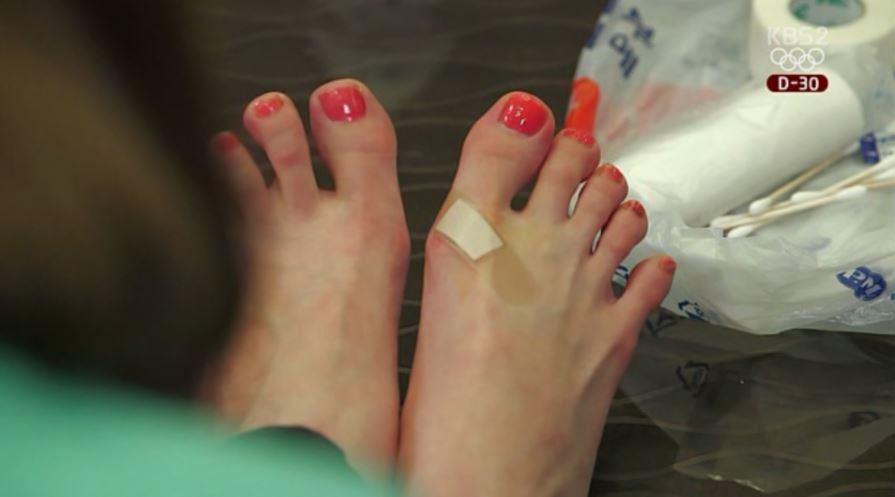 像是IU先前在電視劇中就有脫鞋場面,當中腳上有傷口的樣子不僅是為了配合劇情的演出,IU過去就曾透露因為得長時間穿高跟鞋,所以回到家其實腳都常是浮腫的。就連IU腳趾的關節也留下了練舞磨擦的傷痕