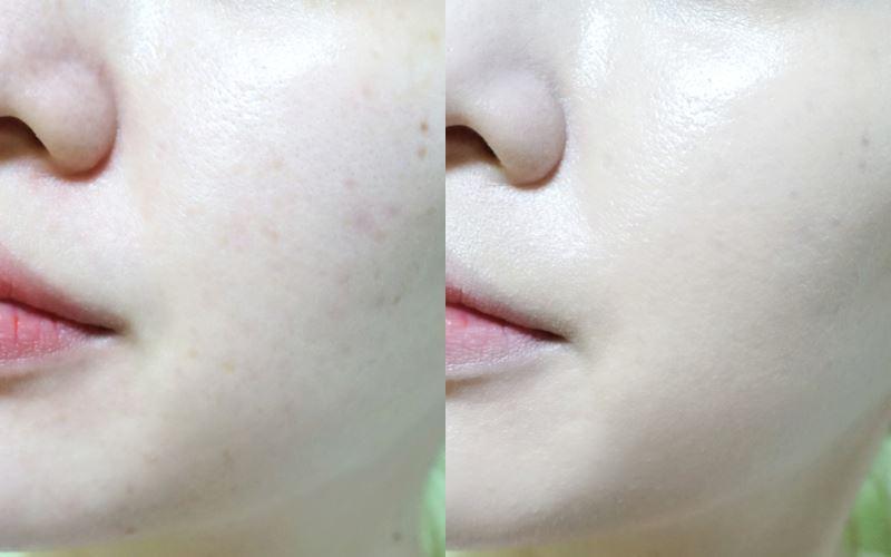 妝感很好,不會有厚重感,鼻翼泛紅處和一些疤也遮掉8成