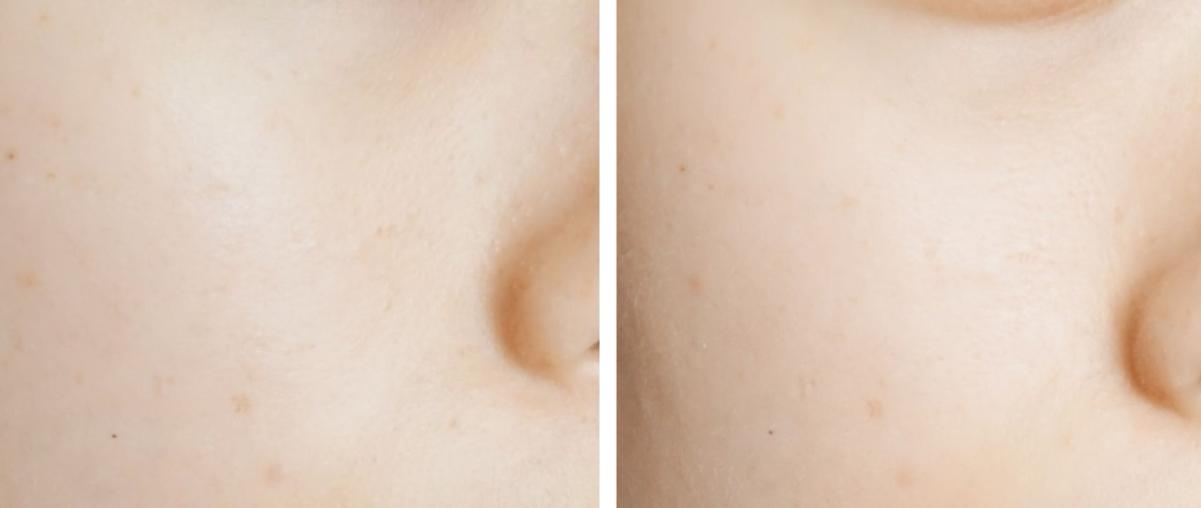 除了可以讓暗沉肌膚變得更亮白之外,還能修護乾燥肌膚,讓肌膚保有水分!質地也很清爽,一年四季使用都沒問題!