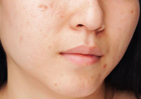 敏感、痘痘肌最麻煩的就是,一方面想要素顏減輕皮膚負擔,但怕傷口嚇到人;另一方面又怕上妝後皮膚不透氣,痘痘永遠好不了......