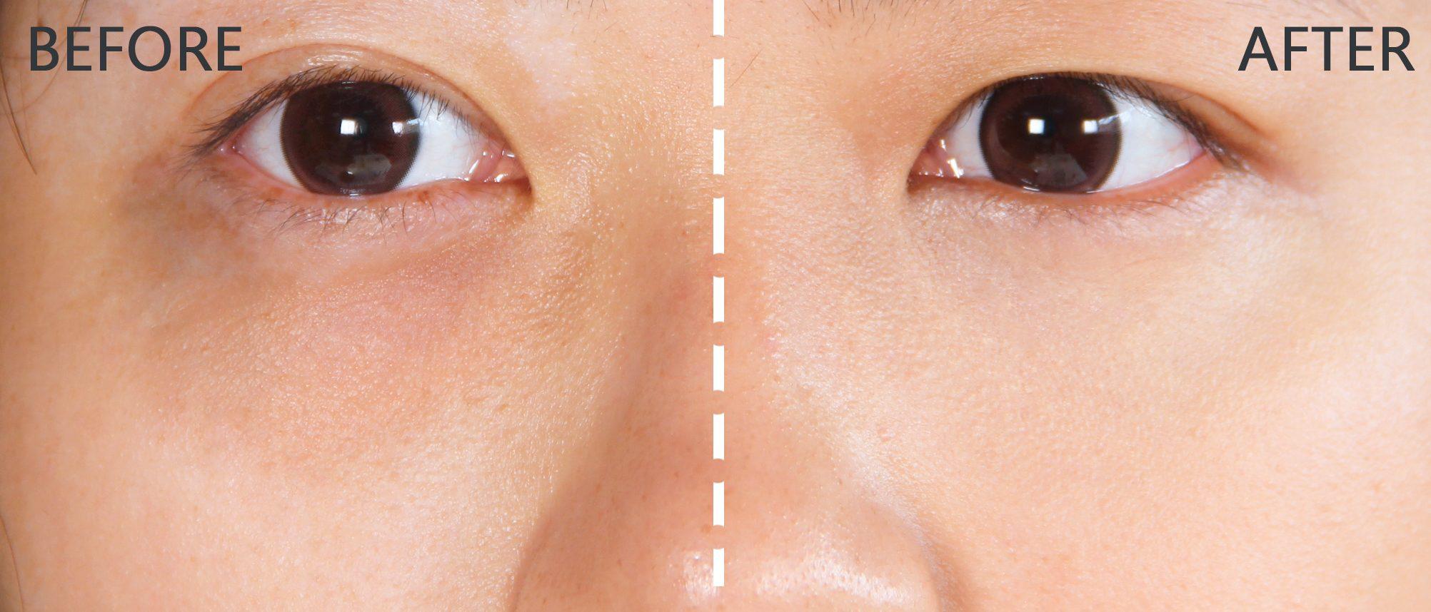 看起來非常自然也沒有任何妝感,但是對比原本的黑眼圈又有一定的遮蓋效果~