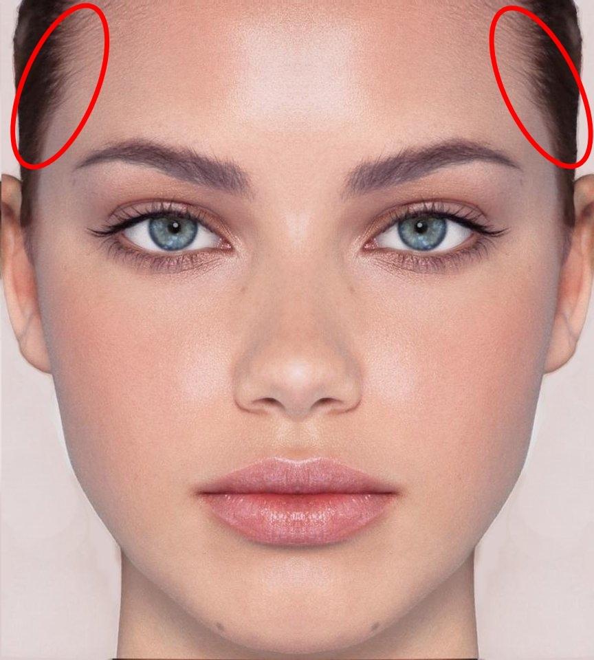 #頭皮:頭皮是皮膚的延伸,因此當然也會長痘痘。頭皮上長痘痘的原因有2個,第1個原因是頭皮毛孔分泌過多的皮脂加上老廢角質囤積,以及灰塵和各種髮用產品等髒汙殘留在頭皮上堵塞頭皮毛孔,形成毛囊炎。油肌要是要特別注意,因為油肌的頭皮出油量也相對多。第2原因則是因為體內熱氣及毒素的累積而造成頭皮生成痘痘。