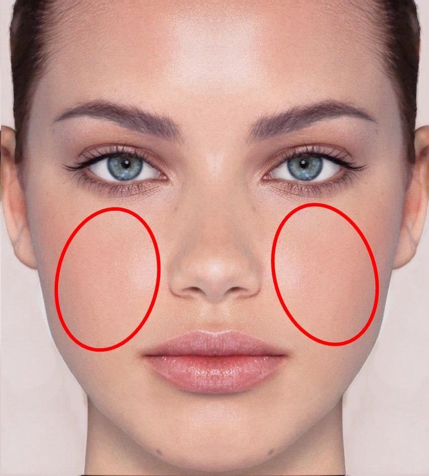 #臉頰:左臉頰長出痘痘帶表肝臟排毒功能有異,可能是因為生活作息不好或是壓力過大導致;而右臉頰長出痘痘可能是肺功能有異常,通常可能伴隨咳嗽或是喉嚨乾燥、多痰等感冒症狀。但若是長髮的人要注意也有可能是頭髮不乾淨,常常碰到臉頰才會造成痘痘產生。
