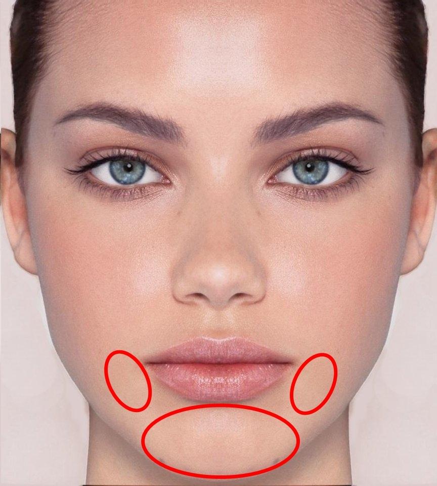 #唇週、下巴:而下巴長痘痘多半跟內分泌失調有關,尤其是女性在排卵期間,常因為荷爾蒙的變化而長痘痘,通常在生理期來臨前下巴就會長出痘痘。