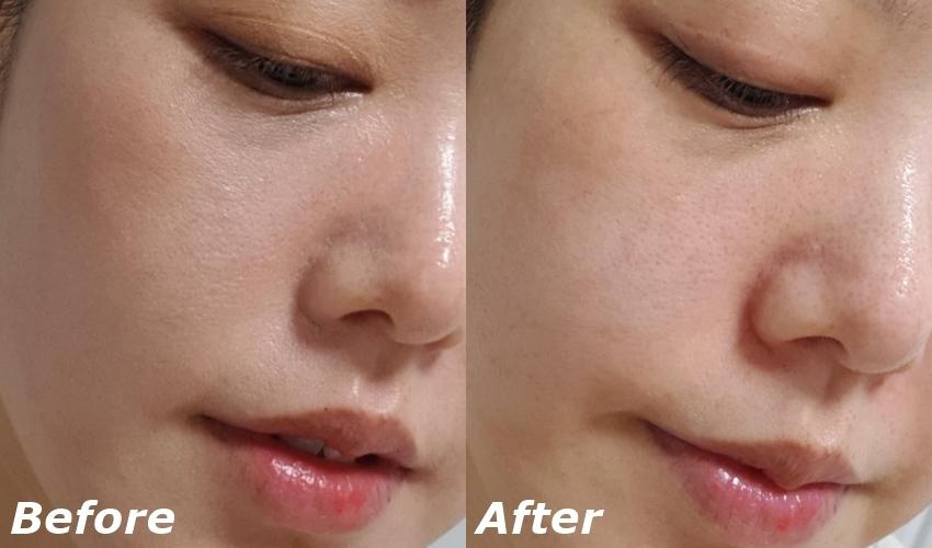 使用前是完全還沒有卸妝的狀態,只接使用玻尿酸泡泡潔顏棉片後就能一次達到卸妝及潔顏的效果,而且清潔效果十分顯著,使用後臉上完全沒有殘留的彩妝或是乾燥起屑的皮脂呢。在很累的那幾天,只要躺在床上、撕開棉片的包裝就可以輕鬆清潔肌膚,讓妳一次就完成卸妝、去角質和洗臉,完全不費力啊~>< 原本要價58元的棉片,現在只要42元就可以購入,必須把握機會啊!