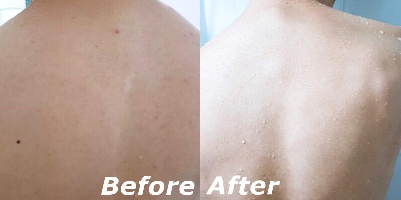 持續使用這款香皂,用肉眼就可以看出明顯的變化,原本斑駁花綠的背部在持續使用香皂後變得白淨無瑕,光看這個背就知道是帥哥啊>///<(哪來的根據?)一個人的肌膚好壞能影響別人對你的印象,真的跟女神一樣身體是痘痘大本營的人就可以同時購入這款香皂跟身體乳,不只當個香香小仙女,還能洗出一身嫩白無瑕肌!