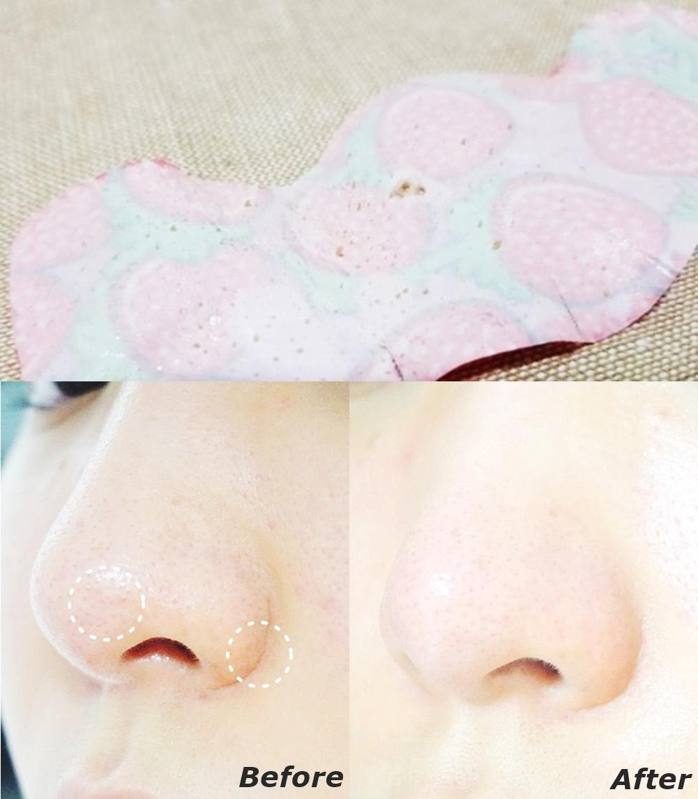 拔除粉刺後一定不能忘記的就是觀察撕下來的粉刺林!(?)還有收斂毛孔,除粉刺固然很重要,但支後收斂擴張的毛孔更重要啊><而且這款草莓鼻鼻貼不只可以擊退草莓鼻,超大片的設計就連兩側臉頰上的粉刺都可以一起管理,敷一次就可以去除兩頰跟鼻子的粉刺及角質。敷著還可以聞到淡淡的草莓香......突然好想吃草莓Q___Q