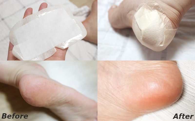 這款足貼添加了乳木果油、摩洛哥堅果油及茶樹精油等天然成分,有助於供給乾澀的腳跟足夠的水分及營養,管理角質的同時也在足部形成天然保濕膜,輕鬆完成水嫩腳跟。想要水嫩嫩的腳跟不需要拿挫刀挫得腳皮滿天飛,也不需要什麼特別的技巧,真的只要撕開、貼上再撕下就OK了!