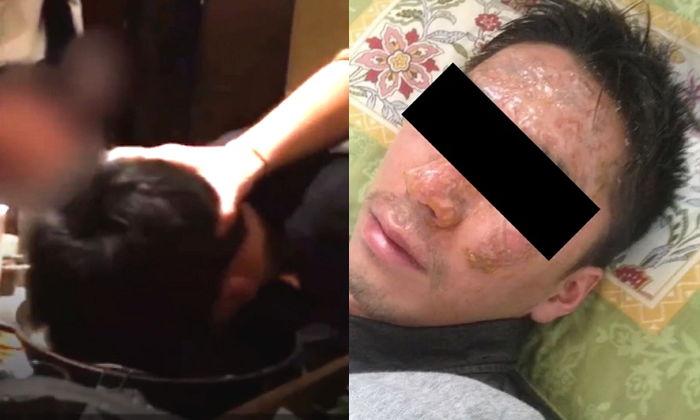 聚餐結束後,男員工自拍把他被燙到的照片發到網上,圖片可以看得出他都被燒到腫起來,還有很嚴重的疤痕! ( 看著也覺得超痛!!)