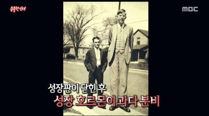 但是在10年後,他突然變成巨人!在26歲的時候,他身高高達180cm,之後還慢慢地再長高,結果超越了2m高!